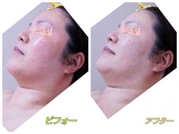 ブライダル前の敏感肌