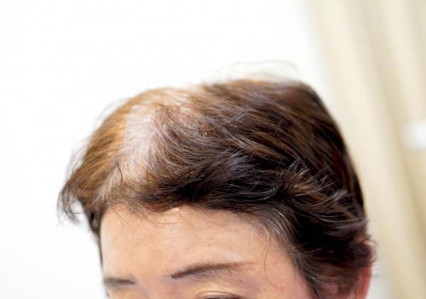 前髪に強い癖毛