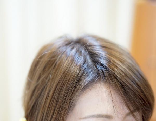前髪生え際割れる