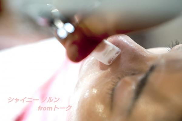 毛穴の皮脂吸引