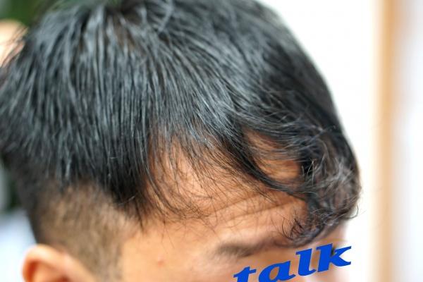 前髪のクセと男性の生え際問題