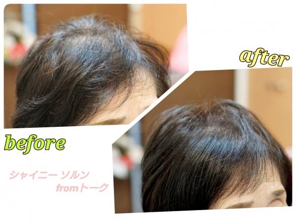 エイジング毛のくせ毛