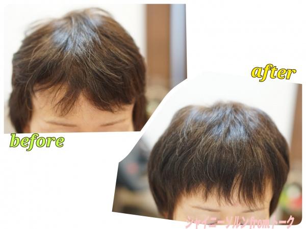 前髪の割れをリセット