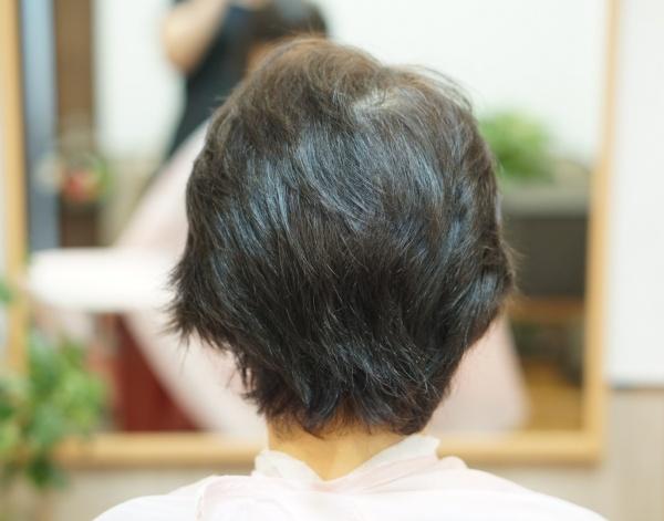 つむじ割れと髪のうねり