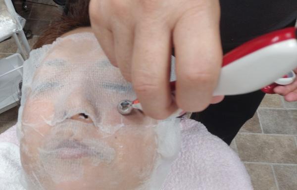 顔の引き締め
