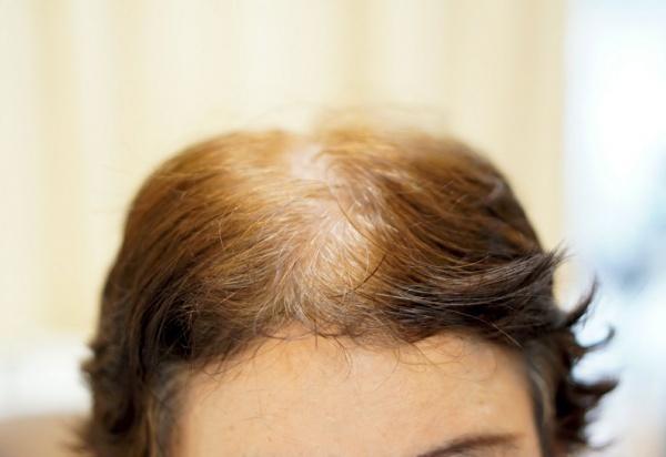 ヘアリセッター前の髪の毛