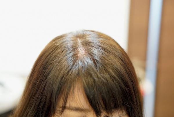 前髪の割れ