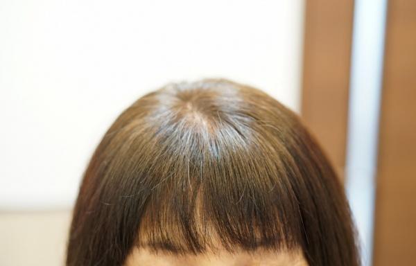 ヘアリセッター前髪の割れ