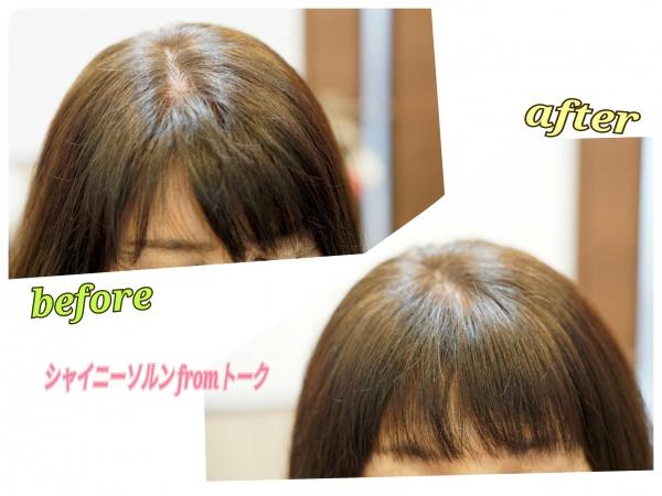 前髪の割れリセッター